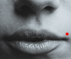 口のニキビ